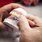 Tandartsverzekering afsluiten zonder basisverzekering