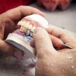 tandartsverzekering zonder basisverzekering 2018